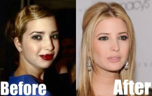 Ivanka-Trump-Nose-Job-Before-and-After