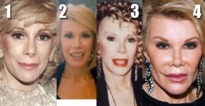 joan_rivers_plastic_surgery_face