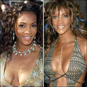 vivica-fox-plastic-surgery